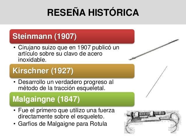 RESEÑA HISTÓRICA Steinmann (1907) • Cirujano suizo que en 1907 publicó un artículo sobre su clavo de acero inoxidable. Kir...