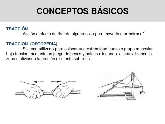 """CONCEPTOS BÁSICOS TRACCIÓN Acción o efecto de tirar de alguna cosa para moverla o arrastrarla"""" TRACCION (ORTOPEDIA) Sistem..."""