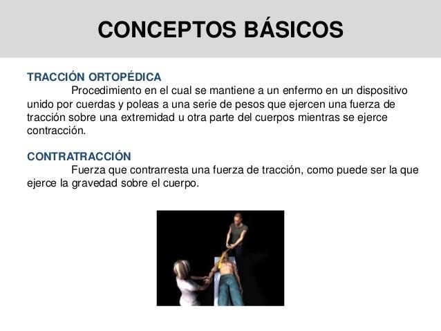 CONCEPTOS BÁSICOS TRACCIÓN ORTOPÉDICA Procedimiento en el cual se mantiene a un enfermo en un dispositivo unido por cuerda...