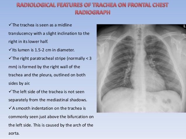 The trachea is seen as a midline  translucency with a slight inclination to the  right in its lower half.  Its lumen is ...