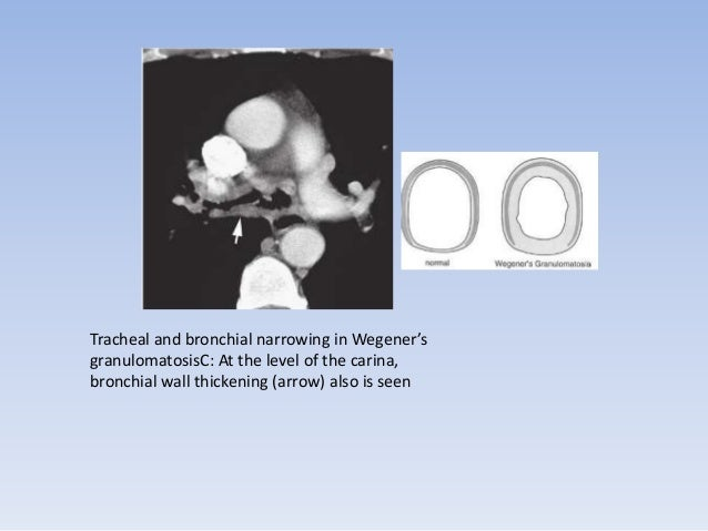 • Tracheomalacia in Wegener's granulomatosis. A: CT image on  inspiration shows the tracheal lumen to be slightly reduced ...
