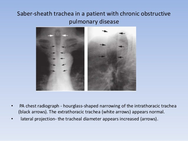 SABER SHEATH –TRACHEA ON CT  • The extrathoracic trachea is normal.  • tracheal cartilage is calcified