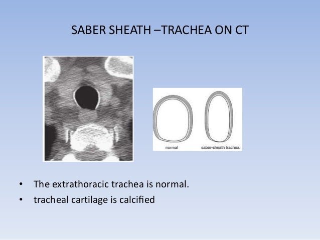 • The intrathoracic trachea at two levels is markedly narrowed from  side to side (arrows), with deformity of the tracheal...