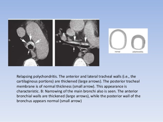 RELAPSING POLYCHONDRITIS  CT shows marked narrowing of the tracheal  lumen, with typical thickening of the anterior  and l...