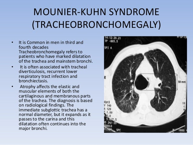 TUMOURS  • Benign  -It present as small, well defined intraluminal  nodules  -papilloma,  fibroma,chondroma,haemangioma