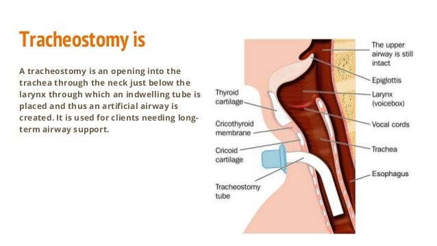 Tracheostomy care and management
