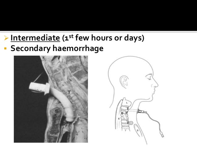 Tracheostomy Ppt
