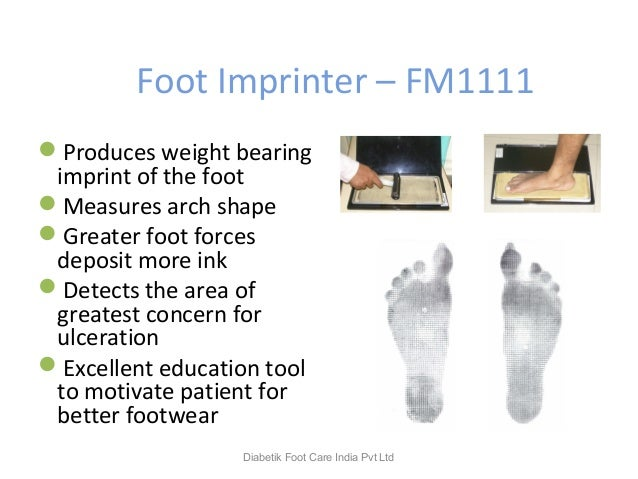 Foot Imprinter – FM1111 Produces weight bearing imprint of the foot Measures arch shape Greater foot forces deposit mor...