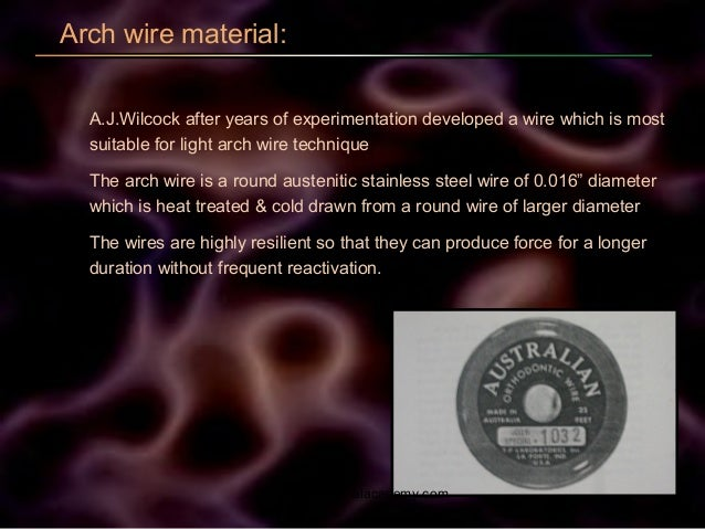 Arch wire material: A.J.Wilcock after years of experimentation developed a wire which is most suitable for light arch wire...
