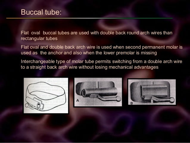 Buccal tube: Flat oval buccal tubes are used with double back round arch wires than rectangular tubes Flat oval and double...