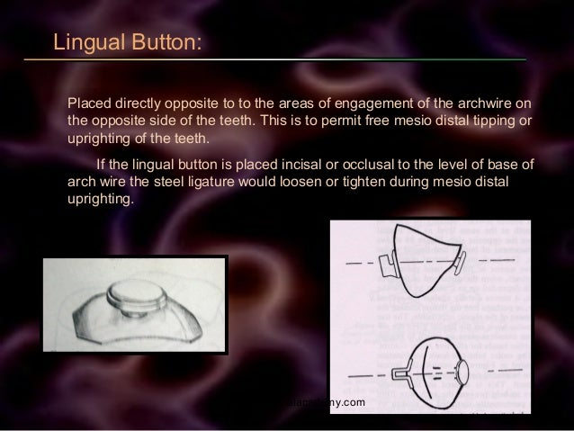 Lingual Button: Placed directly opposite to to the areas of engagement of the archwire on the opposite side of the teeth. ...