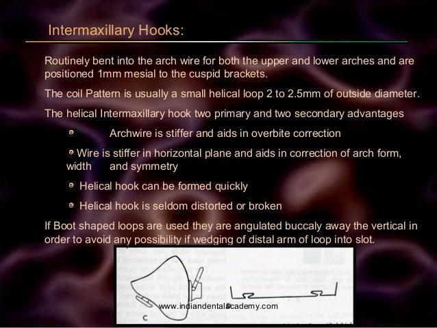 Intermaxillary Hooks: Routinely bent into the arch wire for both the upper and lower arches and are positioned 1mm mesial ...
