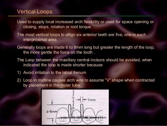 Vertical Loops: Used to supply local increased arch flexibility or used for space opening or closing, stops, rotation or r...