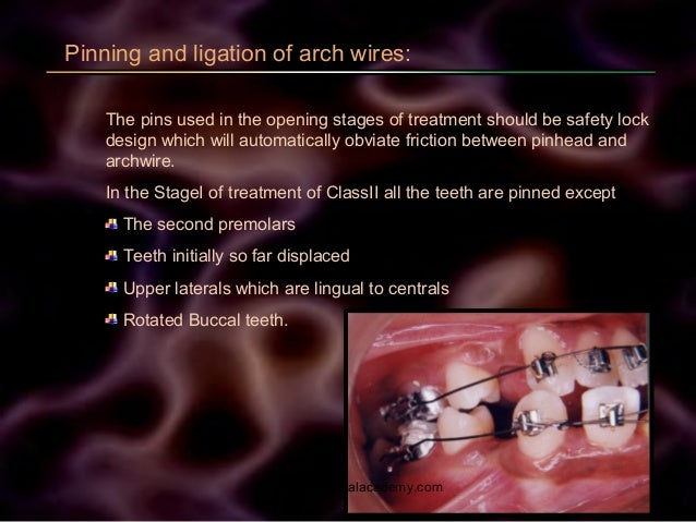 Pinning and ligation of arch wires: The pins used in the opening stages of treatment should be safety lock design which wi...