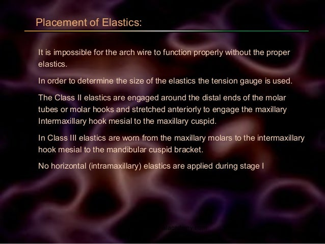 Placement of Elastics: It is impossible for the arch wire to function properly without the proper elastics. In order to de...