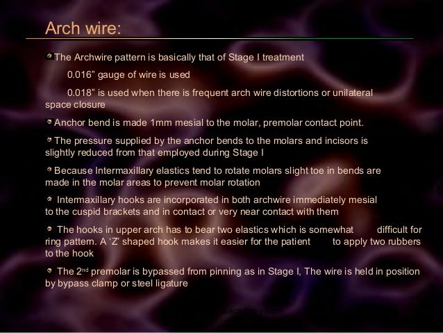"""Arch wire: The Archwire pattern is basically that of Stage I treatment 0.016"""" gauge of wire is used 0.018"""" is used when th..."""