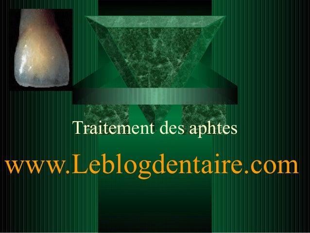 Traitement des aphtes  www.Leblogdentaire.com
