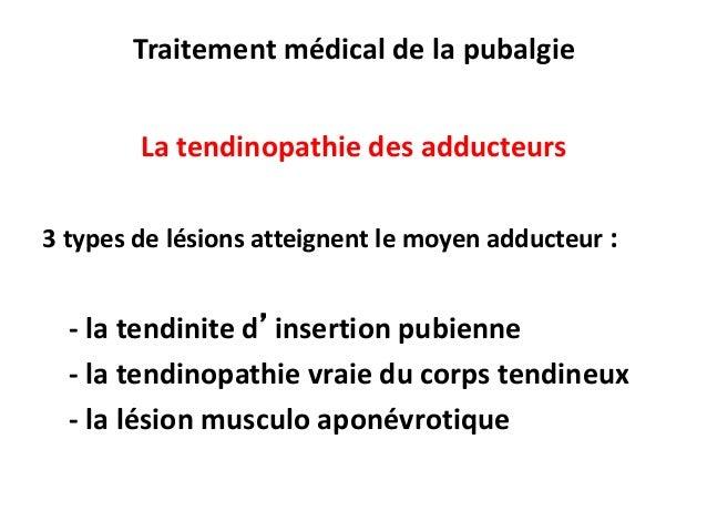 mesotherapie et tendinite
