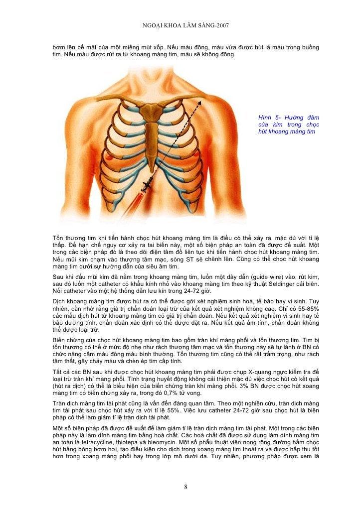 NGOẠI KHOA LÂM SÀNG-2007   bơm lên bề mặt của một miếng mút xốp. Nếu máu đông, máu vừa được hút là máu trong buồng tim. Nế...
