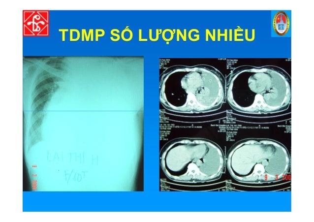 TDMP S LƯ NG NHI U