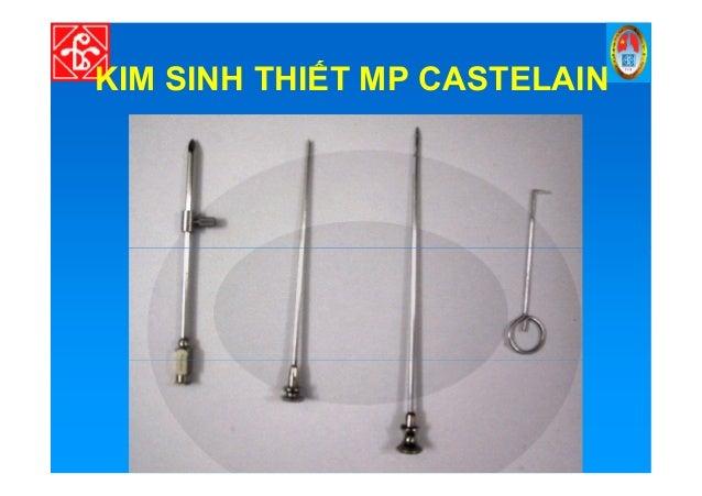 KIM SINH THI T MP CASTELAIN