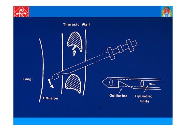 CH N ĐOÁN PHÂN BI T • Viêm ph i. • Viêm màng ph i dày dính. • X p ph i. • Áp xe dư i cơ hoành.• Áp xe dư i cơ hoành. • Thi...