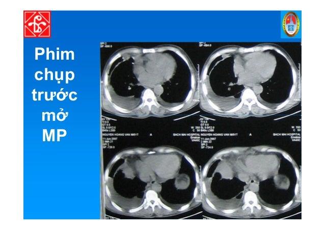 ĐI U TR TDMP • TDMP do ung thư – Hóa tr li u: khi có ch đ nh. – Ch c tháo d ch MP khi có khó th . – Gây dính MP: • Các hóa...