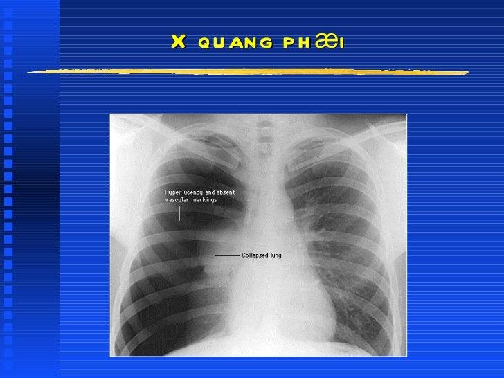 X quang phæi