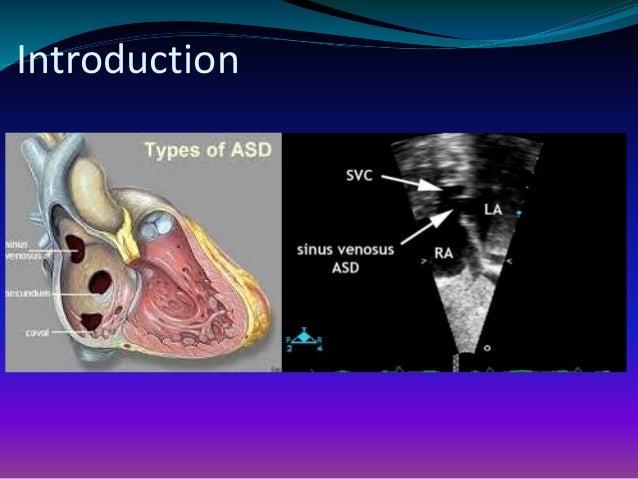 Transcatheter closure of sinus venosus atrial septal defect  Sinus Venosus Asd