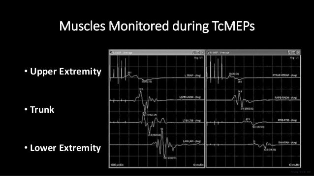 Muscles Monitored during TcMEPs • Upper Extremity • Trunk • Lower Extremity Anurag Tewari MD