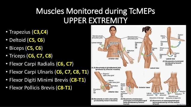 Muscles Monitored during TcMEPs UPPER EXTREMITY • Trapezius (C3,C4) • Deltoid (C5, C6) • Biceps (C5, C6) • Triceps (C6, C7...