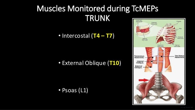 Muscles Monitored during TcMEPs TRUNK • Intercostal (T4 – T7) • External Oblique (T10) • Psoas (L1) Anurag Tewari MD