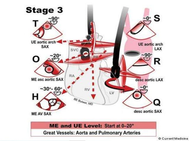  The most consistently attainable view is the TG LAX ; in order to optimize visualization of the valve rotating the probe...