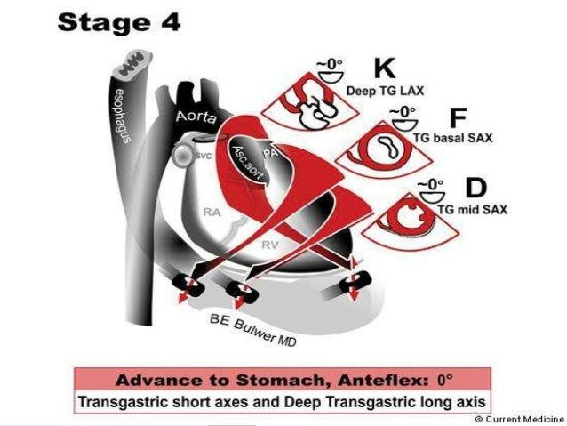  The rims of a secundum ASD are labeled as - 1. Aortic or (anterosuperior), 2. Atrio ventricular (AV) Valve ,mitral or (i...