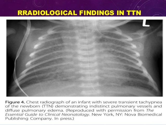 Transient tachypnea of newborn ttn