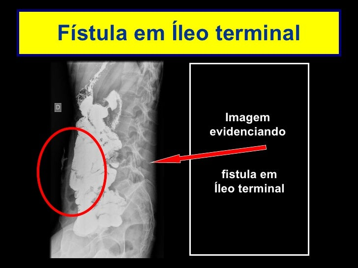 Transito intestinal exame