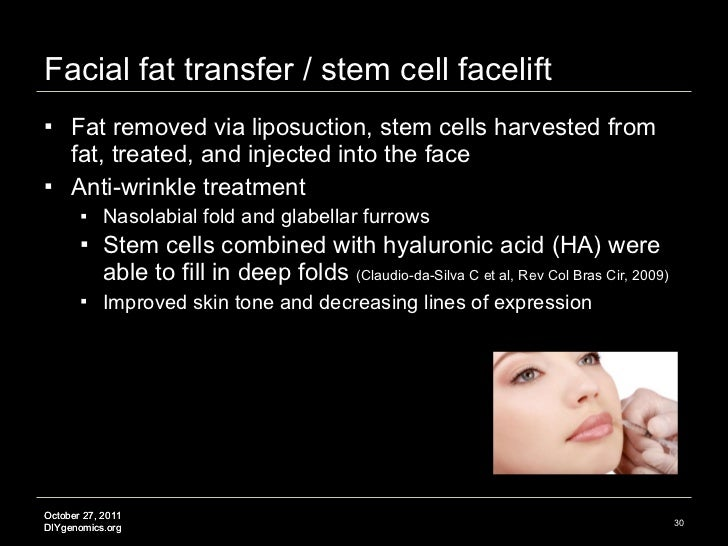 Facial fat transfer / stem cell facelift <ul><li>Fat removed via liposuction, stem cells harvested from fat, treated, and ...