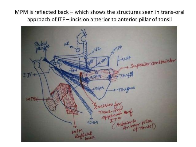 Transoral Transorbital Approaches Of Skull Base