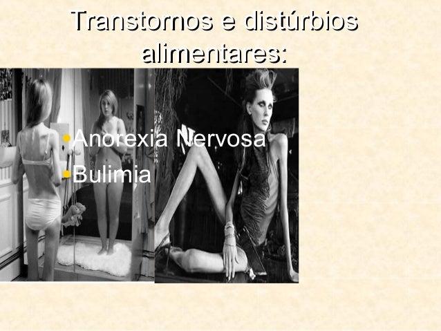 Transtornos e distúrbiosTranstornos e distúrbios alimentares:alimentares: •Anorexia Nervosa •Bulimia