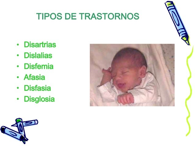 TIPOS DE TRASTORNOS • Disartrias • Dislalias • Disfemia • Afasia • Disfasia • Disglosia
