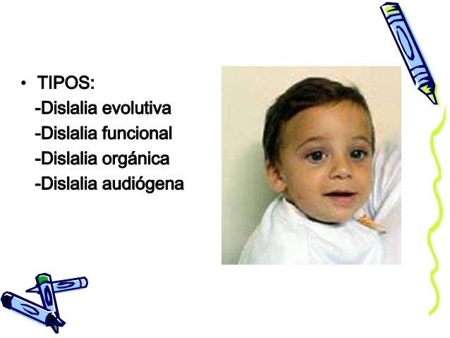 • TIPOS: -Dislalia evolutiva -Dislalia funcional -Dislalia orgánica -Dislalia audiógena