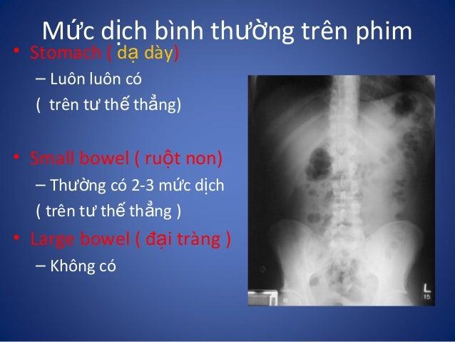 Những dấu hiệu cơ bản trên Xquang bụng by TranTrongTai
