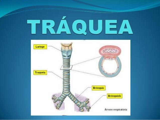 LA PIZARRA: El topic de las victorias de Clemente Traquea-y-bronquios-1-638