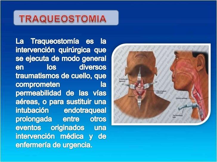 TRAQUEOSTOMIA<br />La Traqueostomía es la intervención quirúrgica que se ejecuta de modo general en los diversos traumatis...