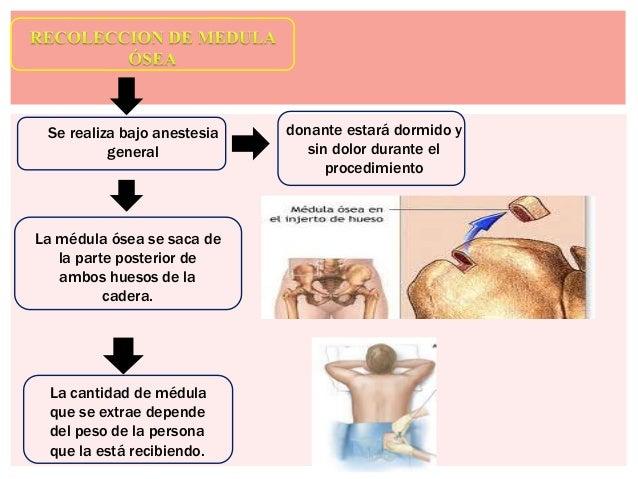 Trasplante de medula osea expo