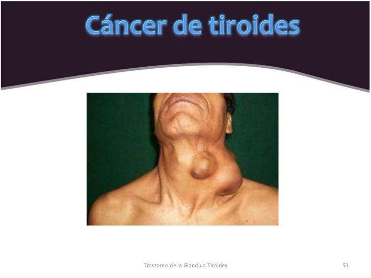 Trastorno de la Glandula Tiroides