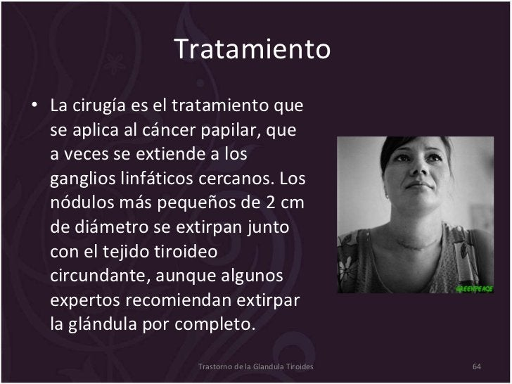 Tratamiento  <ul><li>La cirugía es el tratamiento que se aplica al cáncer papilar, que a veces se extiende a los ganglios ...