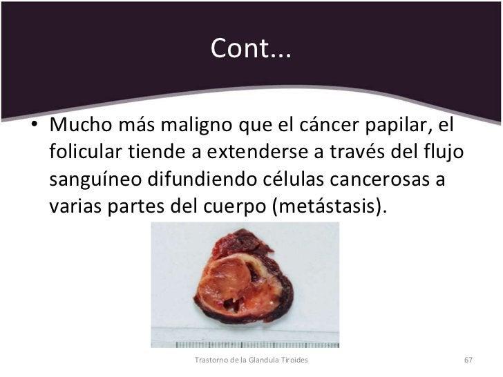 Cont... <ul><li>Mucho más maligno que el cáncer papilar, el folicular tiende a extenderse a través del flujo sanguíneo dif...