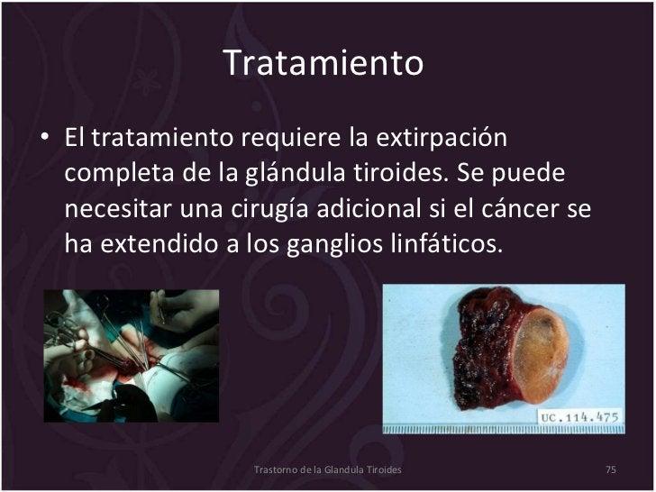Tratamiento  <ul><li>El tratamiento requiere la extirpación completa de la glándula tiroides. Se puede necesitar una cirug...
