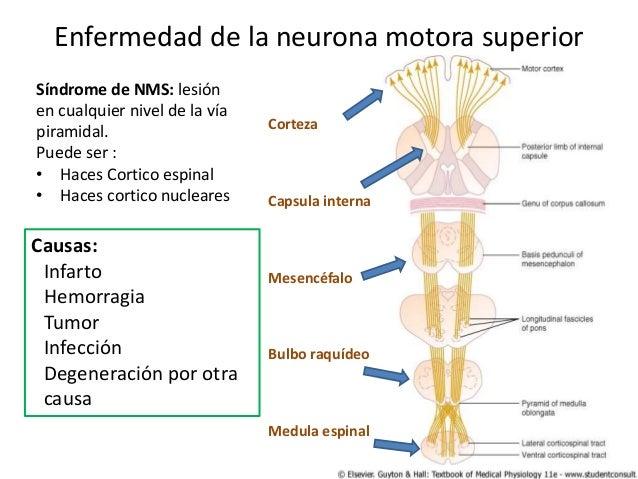 Trastornos de la neurona motora